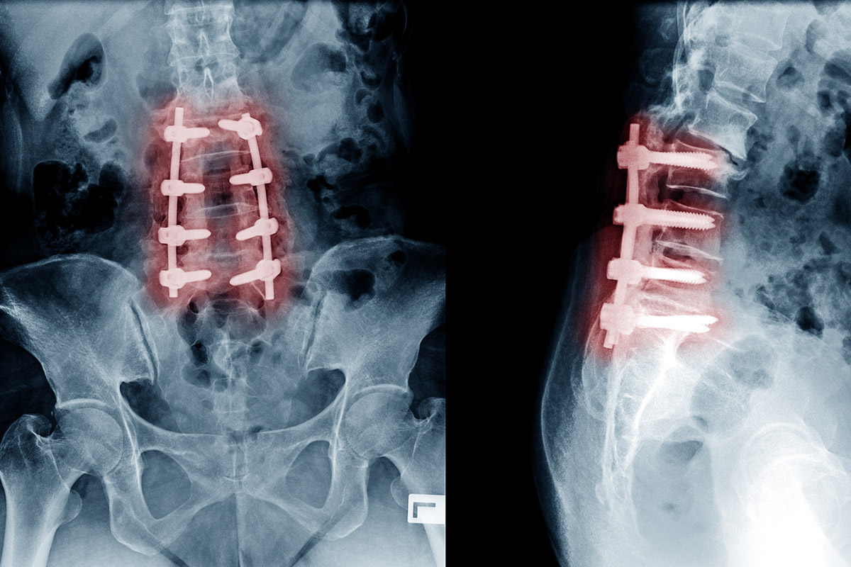 Spinal surgery rods and screws