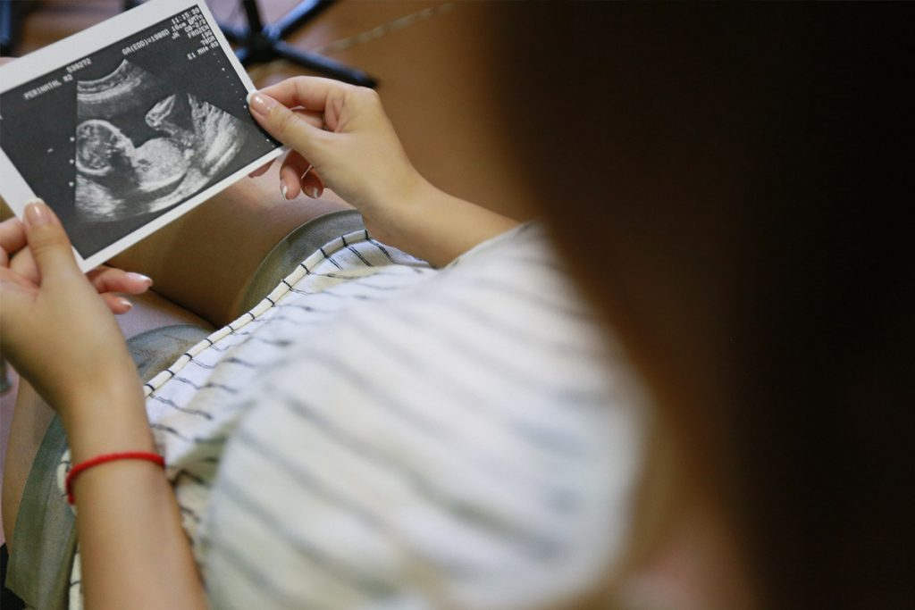 Woman looking at sonogram photo